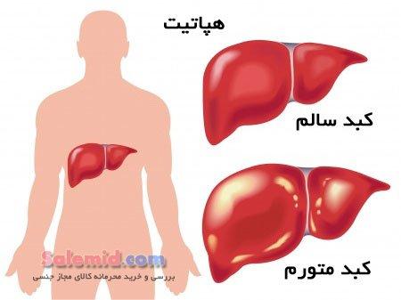 هپاتیت آ ب سی درمان زردی پوست یرقان اسهال استفراغ تب خون آلوده  سرنگ خالکوبی پیرسینگ درمان سرطان کبد Hepatitis A B C