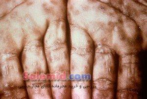 سیفلیس سفلیس باکتری مراحل درمان انتقال شانکر زخم بیماری تقلید پوست علائم ایدز