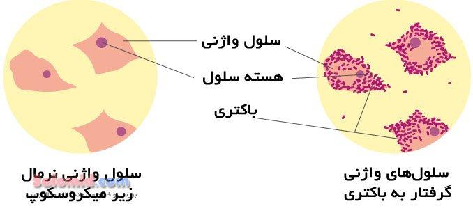 بوی بد واژن التهاب باکتری علائم و نشانه های واژینوز باکتریال سوزش ترشح غلیظ عفونت عواقب درمان pH  نرمال BV Bacterial Vaginitis