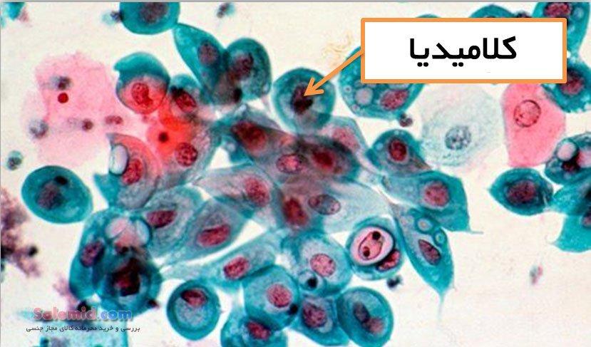 کلامیدیا تراکوماتیس باکتری بیماری حاملگی انتقال خونریزی خون دماغ ترشحات واژنی درمان مرگ رابطه مقعدی