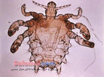انگل شپش جرب عانه تریک کرمک خارش پوست انتقال گال قارچ Parasite, pubic louse